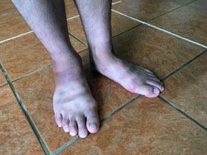ダイスケの足